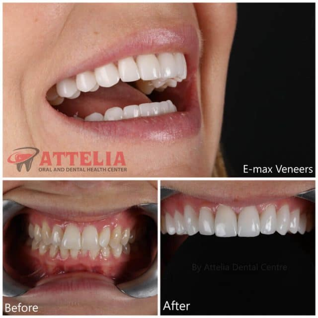 Attelia dental turkey dental treatment patient reviews 32