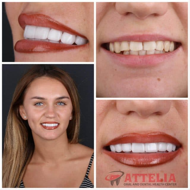 Attelia dental turkey dental treatment patient reviews 16