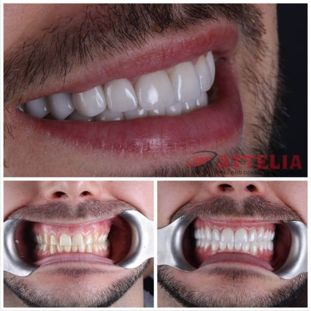 Attelia dental turkey dental treatment patient reviews 15
