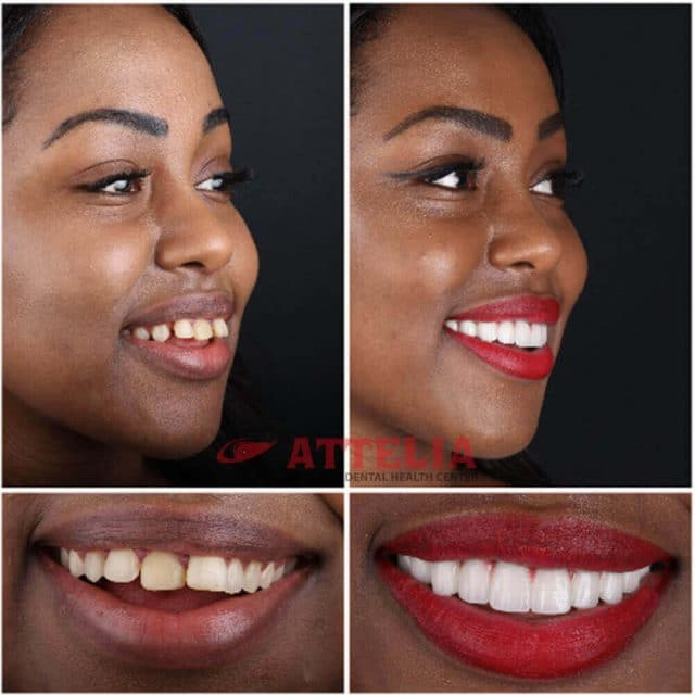 teeth veneers Turkey