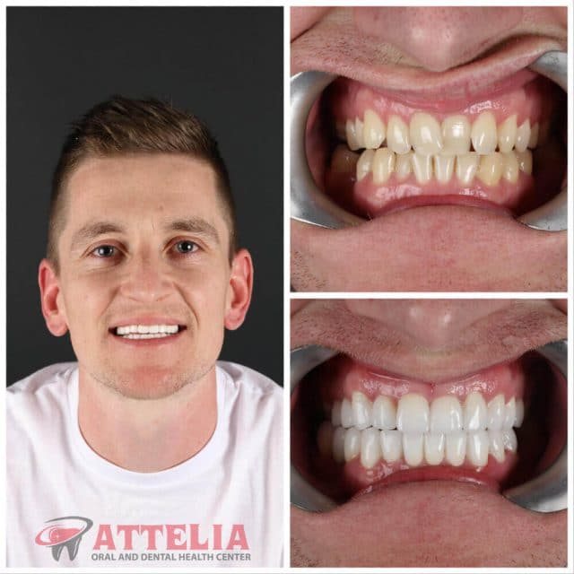 Attelia dental turkey dental treatment patient reviews 42