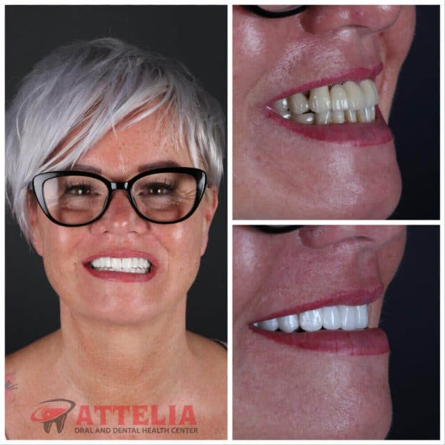 Attelia dental turkey dental treatment patient reviews 45