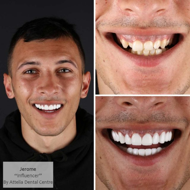 Our-patient-designed-his-new-smile design